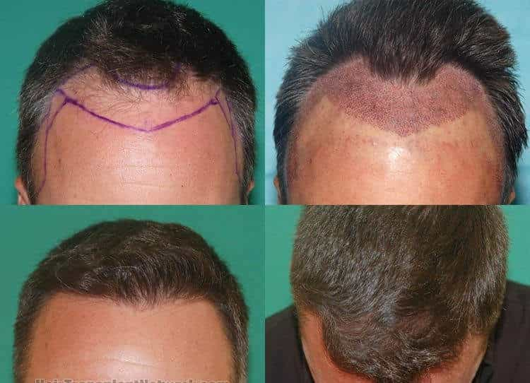 Image result for hair transplant bangalore